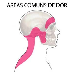 Áreas comuns de dor de cabeça tensional